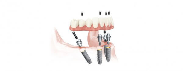 "Image result for ""caseysmiles.com.au/services/root-canal-treatment"""